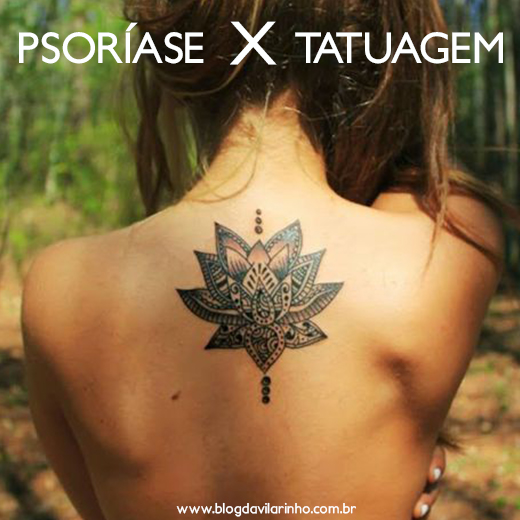psoríase-x-tattoo